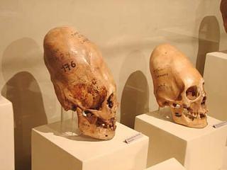 koponya-paracas